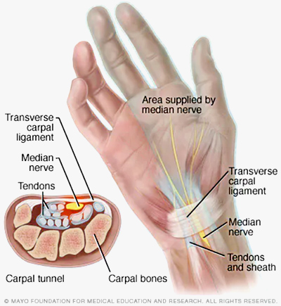 Nerve Flossing: Carpal Tunnel